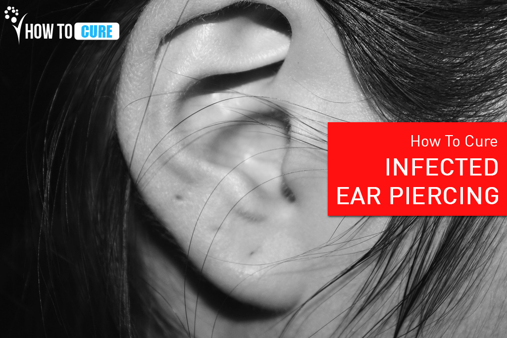 Tips To Cure Ear Piercing Infection - 6 Natural Remedies