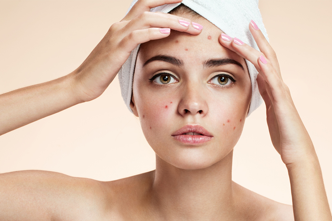 remedies for acne papules