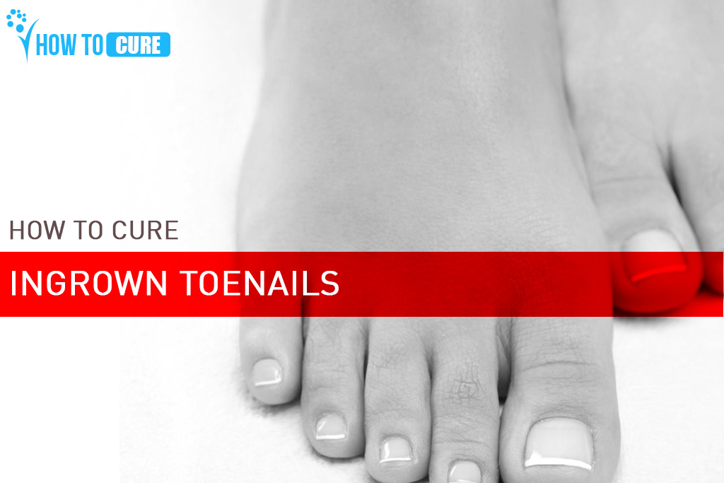 remedies for ingrown toe nails