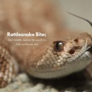 how to treat a rattlesnake bite