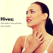 How to get rid of Hives