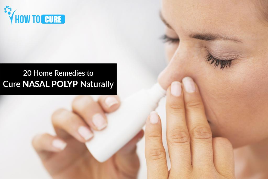 cure-nasal-polyp-naturally