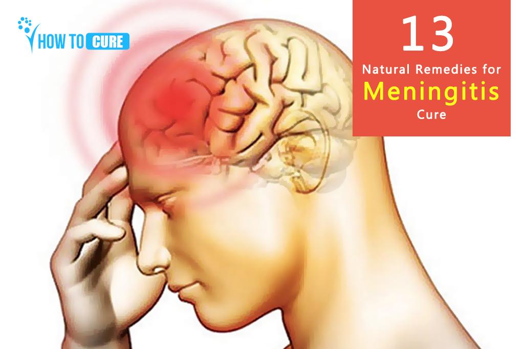 13 Natural Remedies for Meningitis Cure