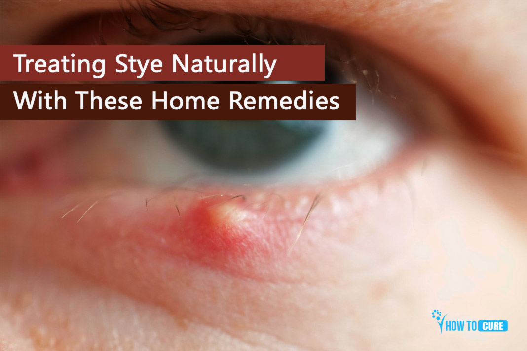 Treating Stye Naturally With These Home Remedies