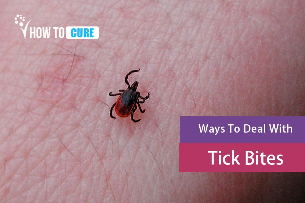 how to treat tick bites
