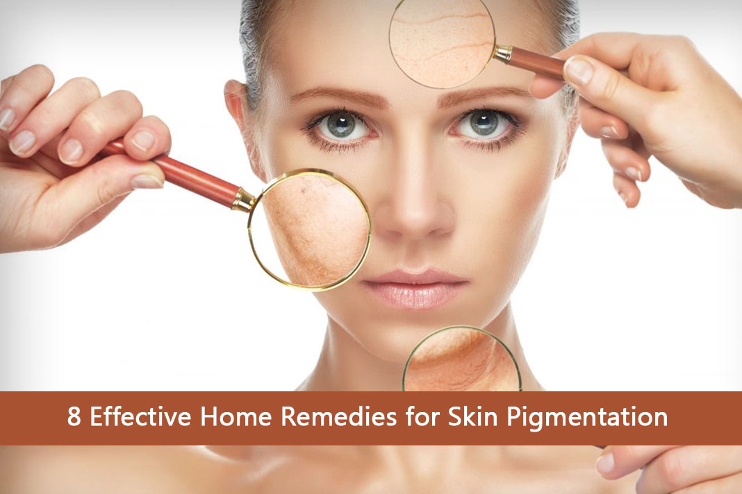 8 Effective Home Remedies for Skin Pigmentation