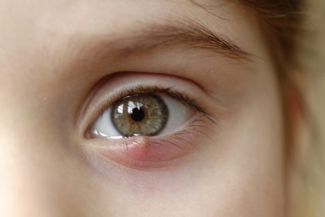 How to Get Rid of a Stye Follow These 5 Home Remedies