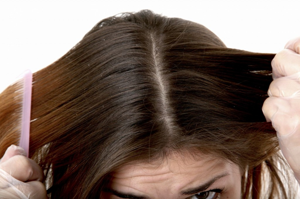 20 Effective Natural Remedies for Dandruff