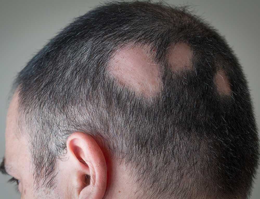 Remedies for Male Pattern Baldness