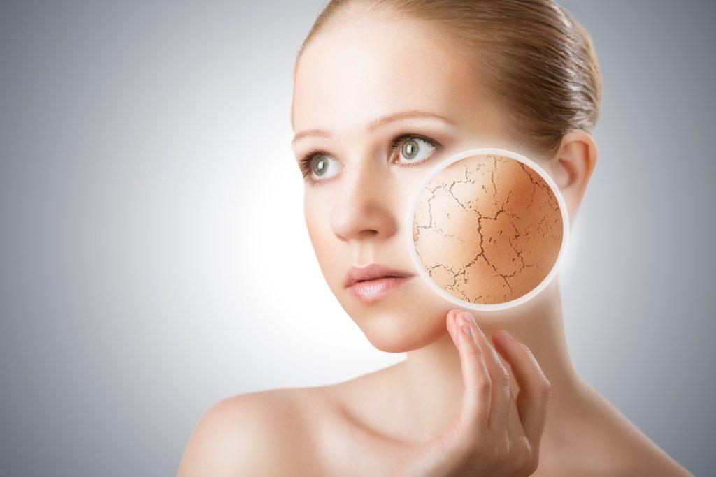 Dryness of Skin