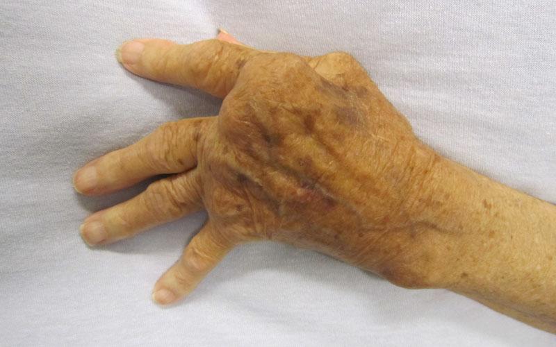 Sunflower Lecithin Benefits for Arthritis