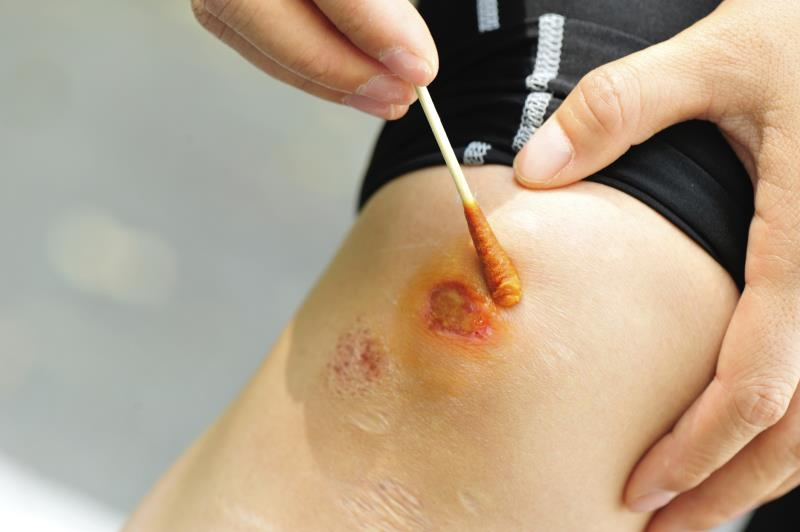 Tamanu Oil Benefits for Wounds
