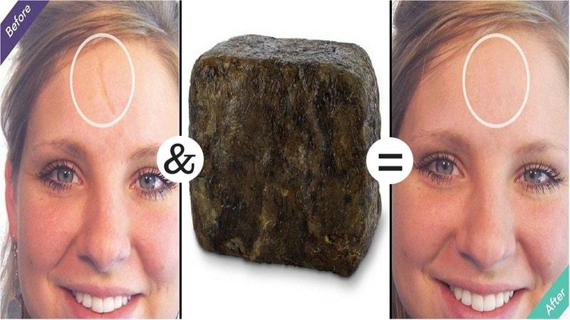 black soap for elimination of scars