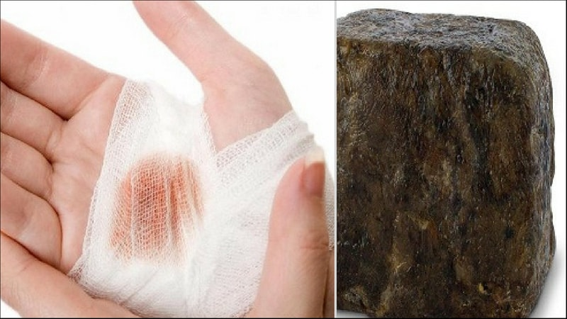 black soap heals wounds