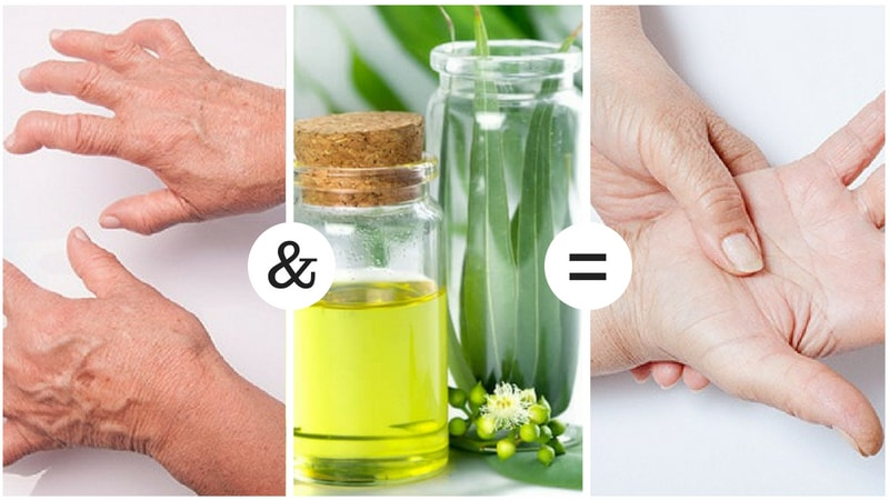 eucalyptus oil for arthritis