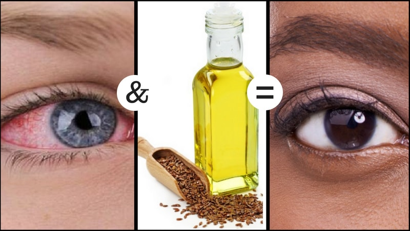 flaxseed oil to dry eye syndrome