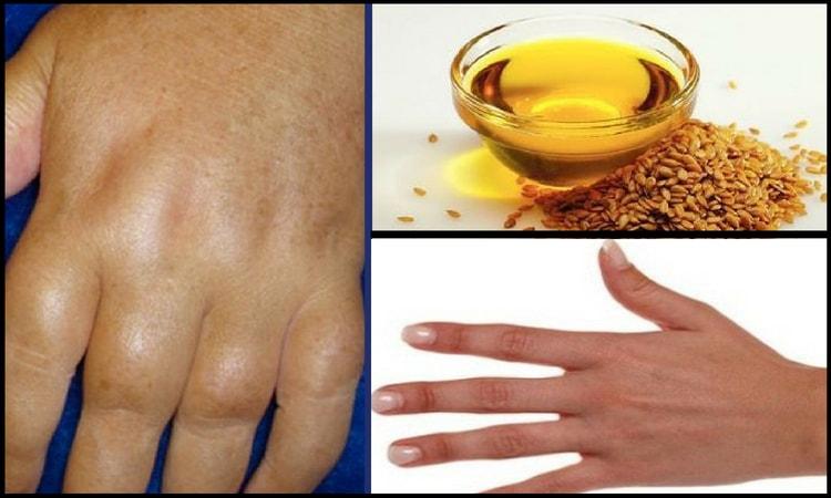 protection for arthritis