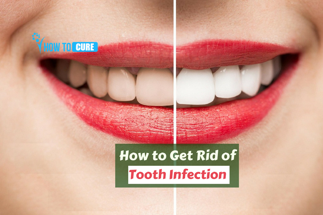 how to get rid of a tooth infection without antibiotics