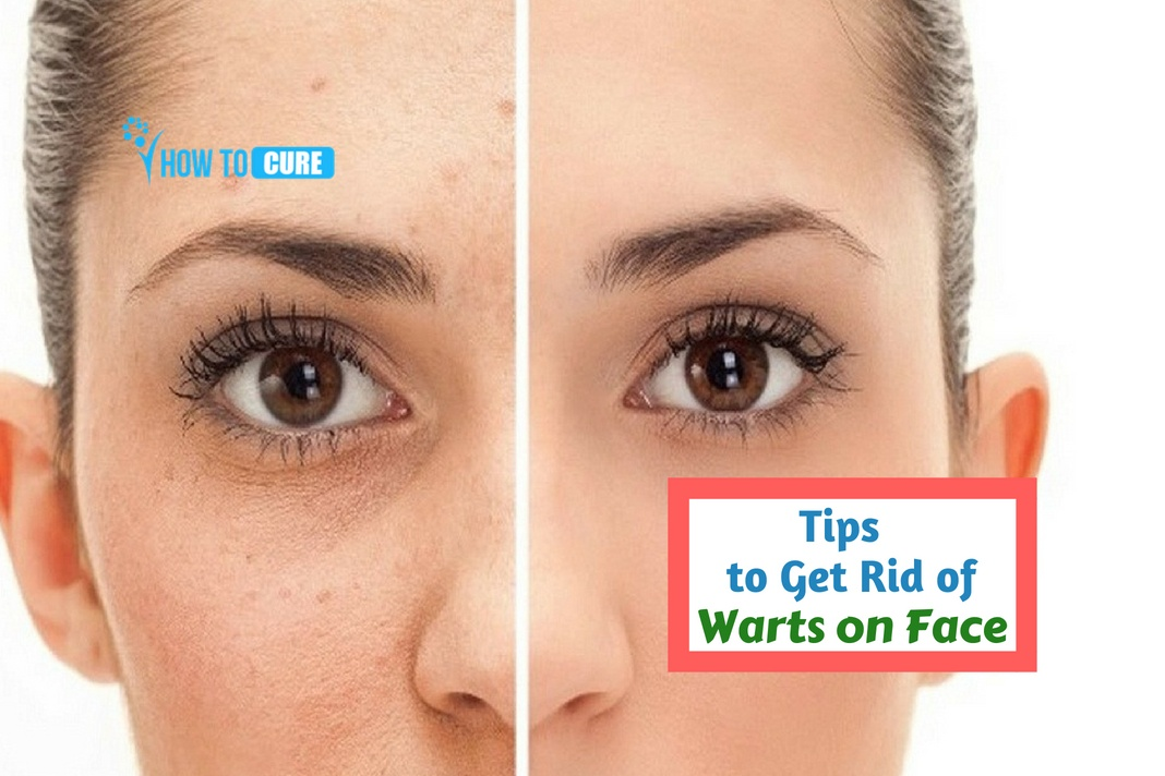 How To Get Rid Of Warts On Face 10 Natural Remedies