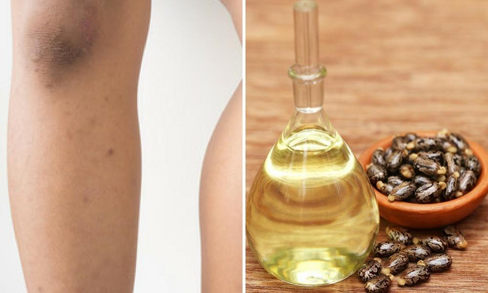 oil of castor for dark spots