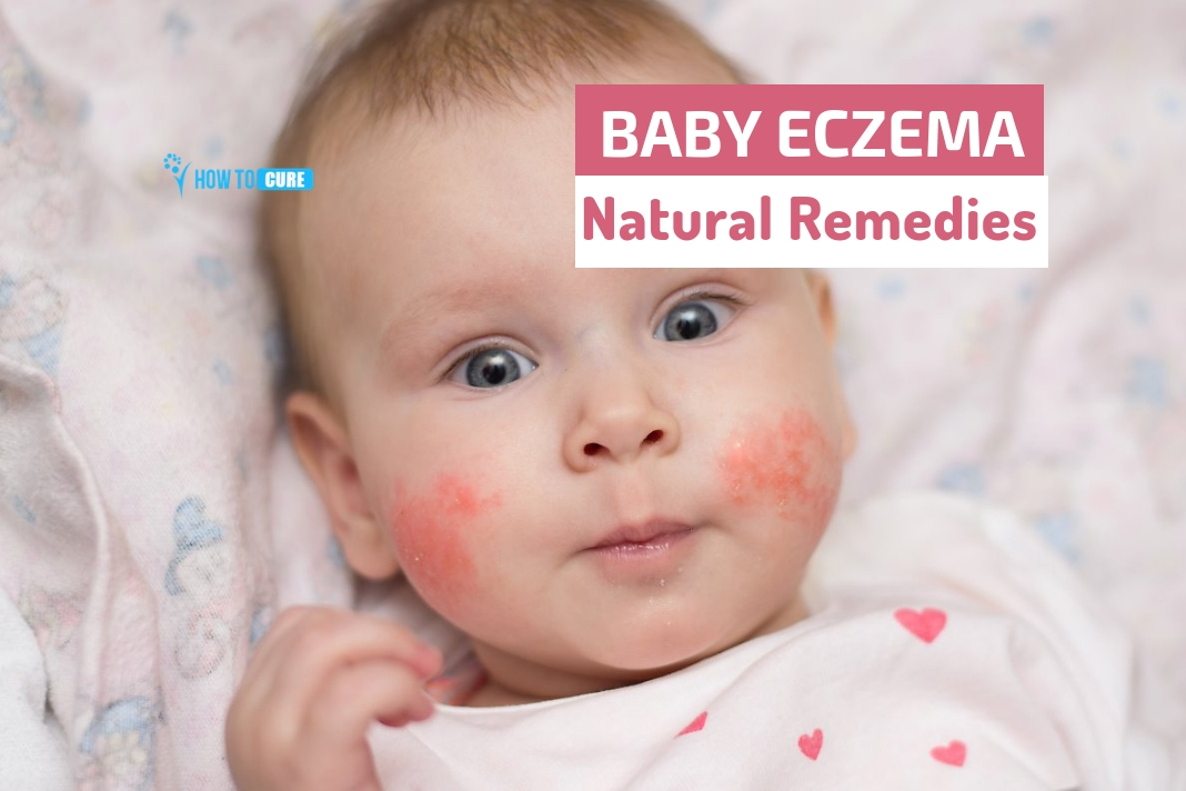 5 Best Baby Eczema Natural Remedies That You Must Try