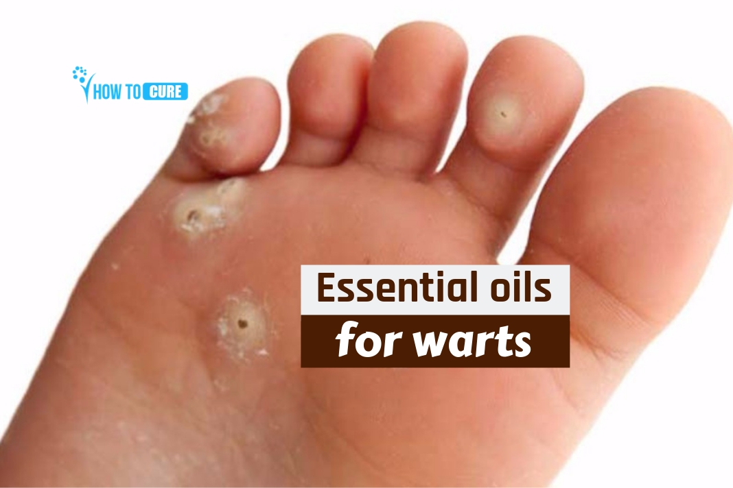 essential oils for warts