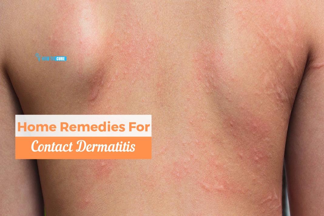 How To Treat Contact Dermatitis Top 5 Contact Dermatitis