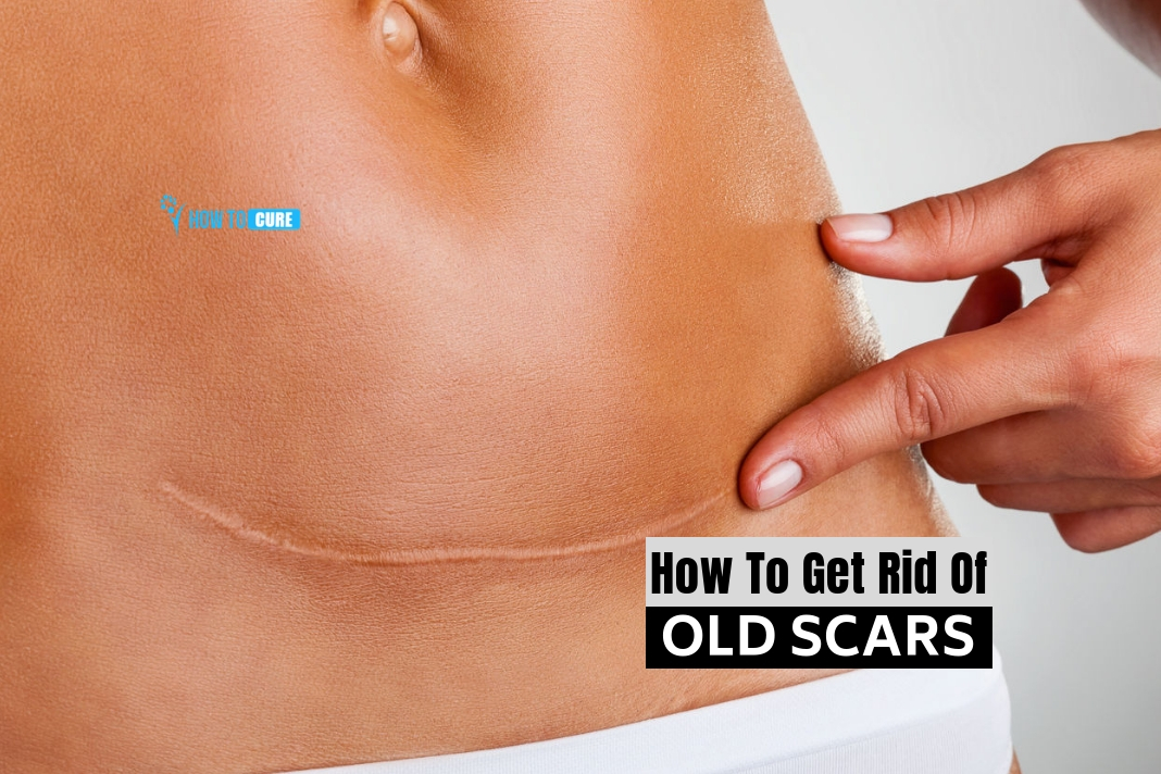 how to get rid of old scars