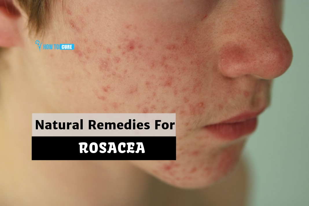 Rosacea Natural Treatment 5 Best Remedies With Proven