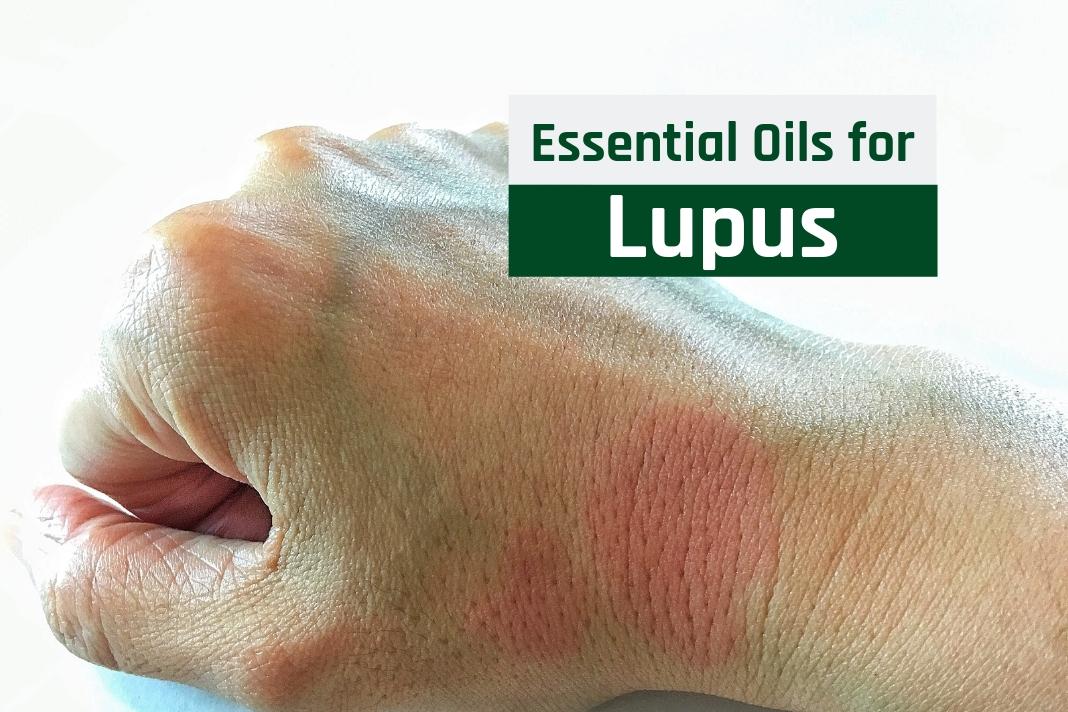 essential oils for lupus