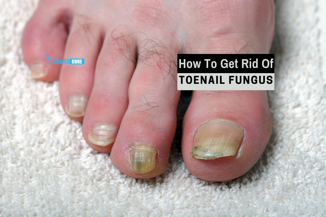 5 Super-Effective Ways For How To Get Rid Of Toenail