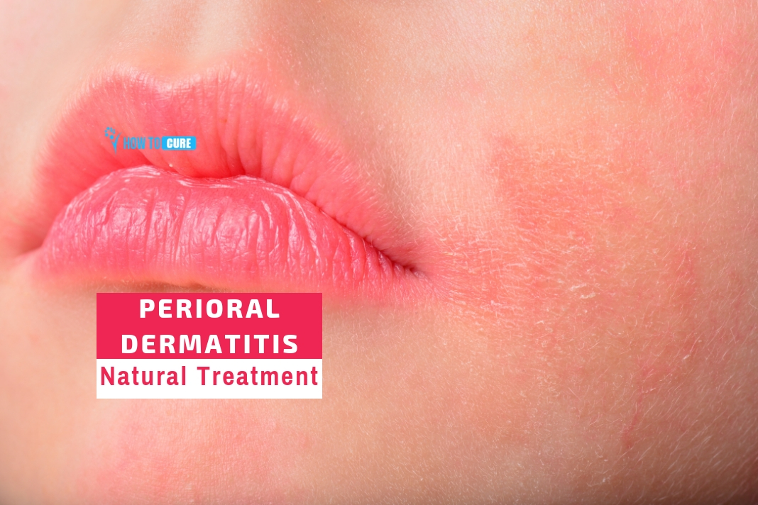 5 Best Perioral Dermatitis Natural Treatment Remedies