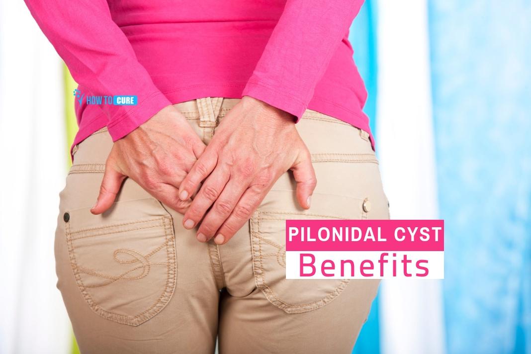 5 quick pilonidal cyst home treatment cures
