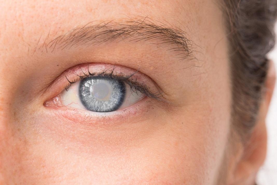 castor oil for cataract