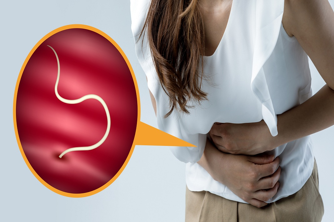 how to get rid of pinworms with terrific natural treatment