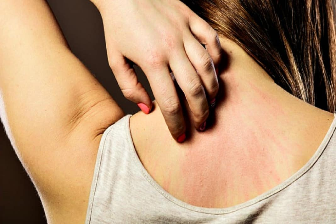 how to get rid of a stress rash