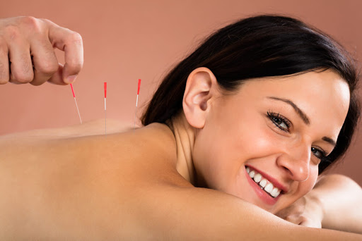 Acupuncture to cure Insomnia