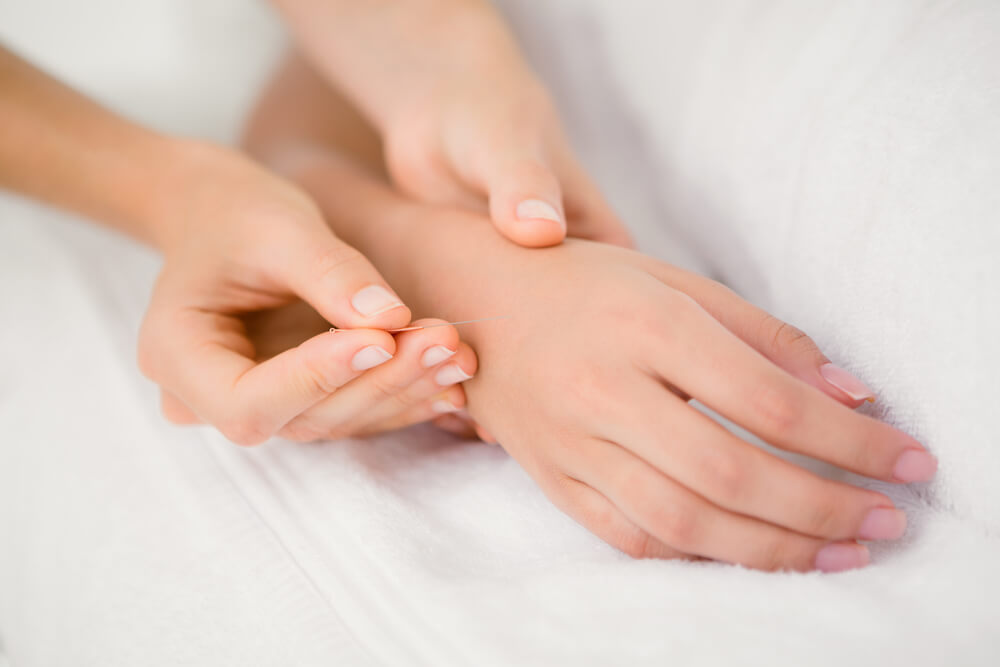 Acupuncture Arthritis