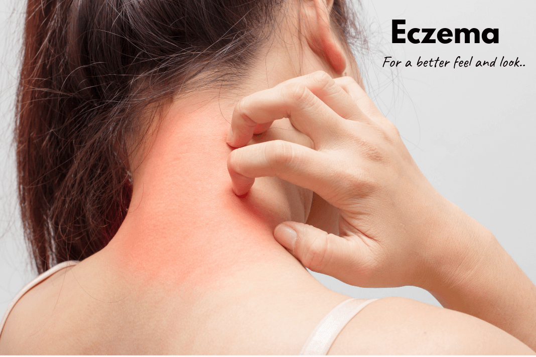 How to Cure Eczema