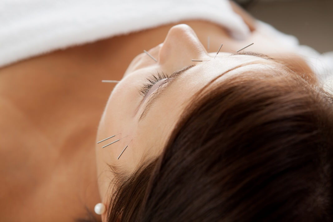 Acupuncture For Acne Benefits Side Effects And Safety