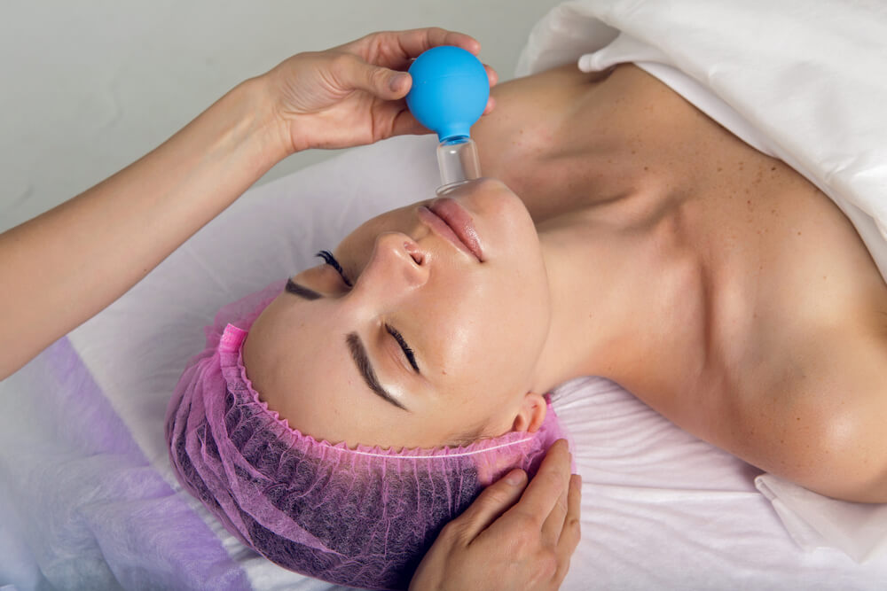 acne facial cupping therapy