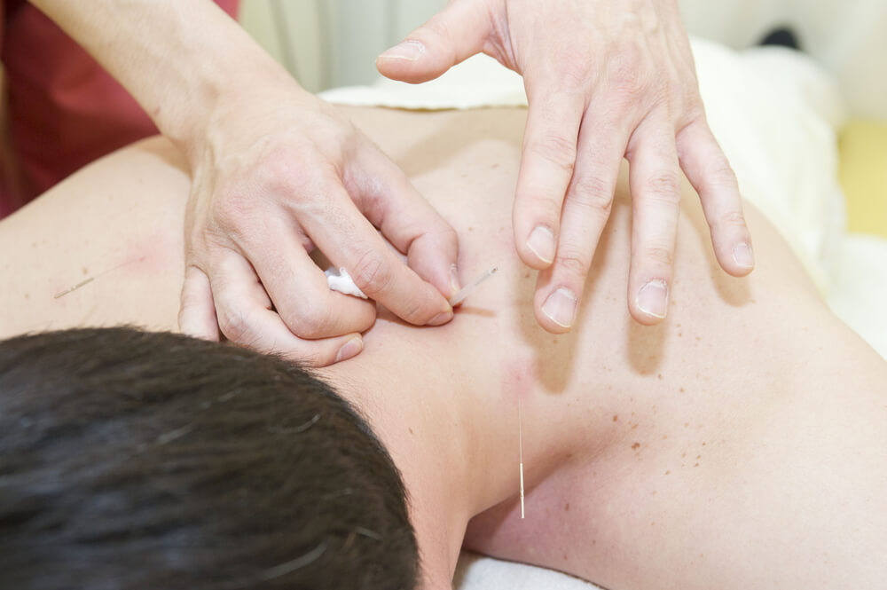 Acupuncture For Neck Pain: An Effective Way To Get Rid Of ...