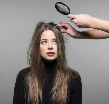 cure dandruff with remedies
