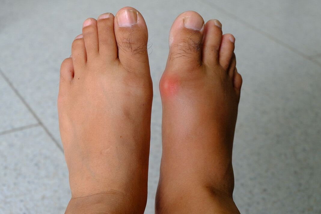 vitamins for gout