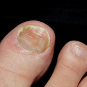vinegar for toenail fungus
