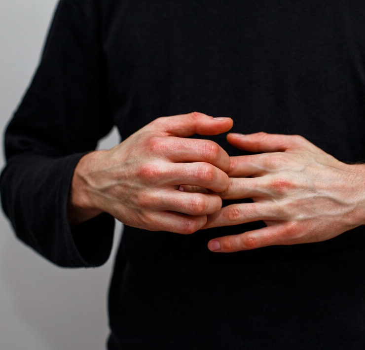 vitamins for psoriasis