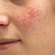 vitamins for rosacea