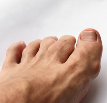 Cherry extract for gout