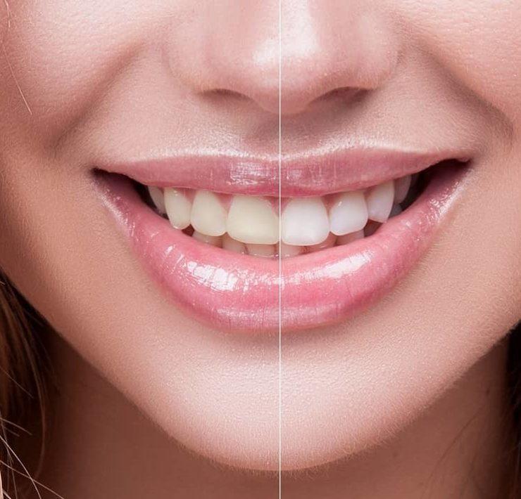 Coconut oil for teeth whitening