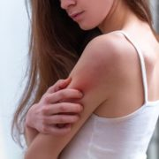 Essential Oils for Heat Rash